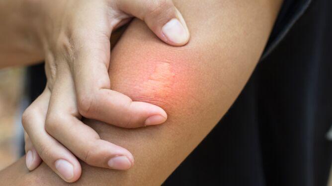 Ta alergia może cię zabić. Sprawdź, jak się chronić